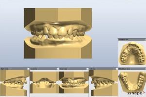 Numérisation, modèle d'étude 3D et impression 3D Orthoklass